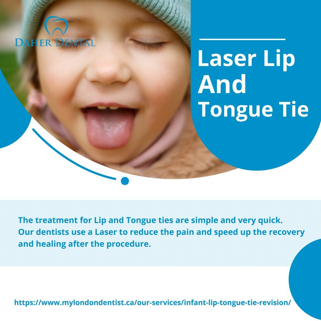 Lip and tongue ties